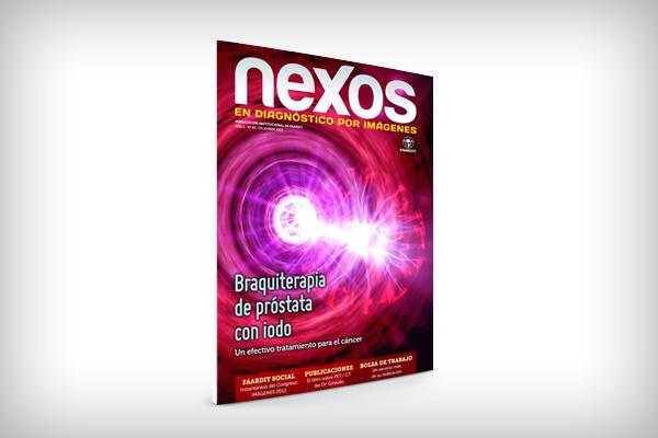 Nexos03